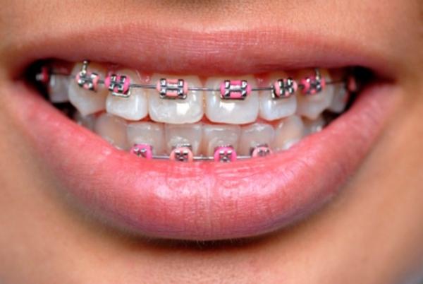 Strojček na zuby vás vyjde draho...