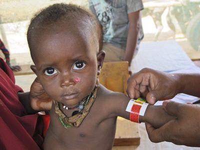 Keňa :  výživový program
